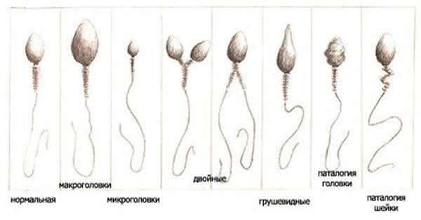 Дефект головки сперматозоида более 40